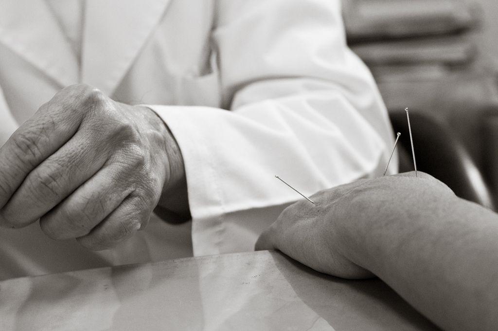 Acupuntura o Medicina Tradicional China (MTC) y salud