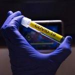 covid19 onu - más de 4 millones 700 mil contagios