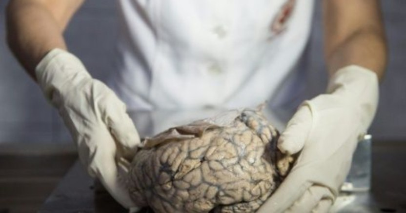 muestran el video cxmo el cerebro se deshace de neuronas muertas .jpg 673822677 - Muestran el video cómo el cerebro se deshace de neuronas muertas