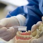 dientes - ¿Cómo conseguir una sonrisa radiante? Seis recomendaciones para evitar que los dientes se pongan amarillos