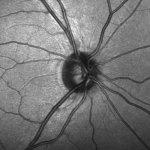 nervio optico celulas madre - Investigadores descubren células madre en el nervio óptico que podrían preservar la visión
