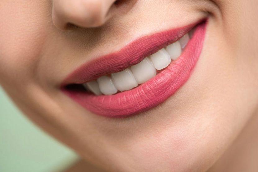 Dientes sonrisa Shiny Diamond en Pexels - Dentadura sana, blanca y sin caries: 5 alimentos para mantenerla