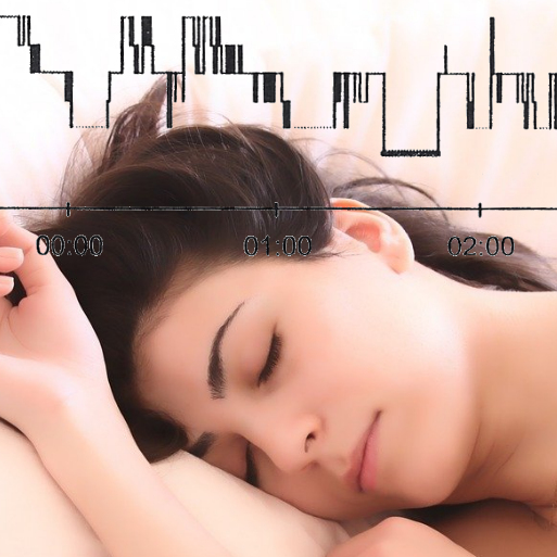 Sleeping woman with brunette hair and peaceful face on a cream-coloured pillow with a graph of sleep stages across the top showing bad sleep.