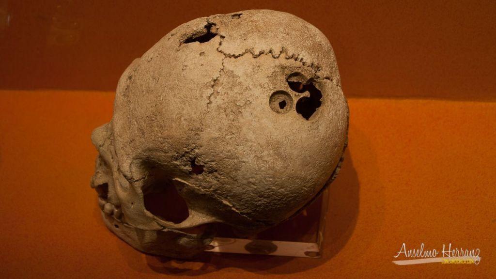 Cráneo con trepanación del museo del sitio de Monte Albán