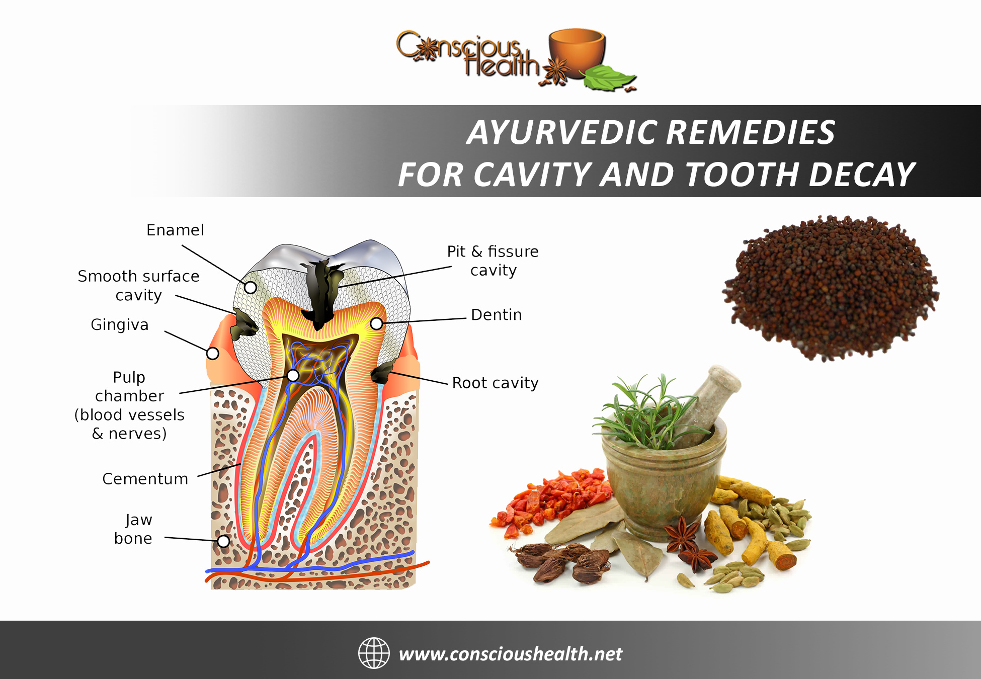 Ayurvedic Remedies for Cavity and Tooth Decay - Conscious Health