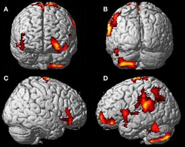 Scientists believe the left side of several areas of the brain associated with kinaesthetic imagery are responsible for the sensation of being able to leave your body and float above it. Increased activity was seen in the middle and superior orbitofrontal gyri (A,B,D) the supramarginal gyrus (B) and inferior temporal gyrus (D)