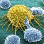Does Cellulite Signal a Poor Lymphatic System?