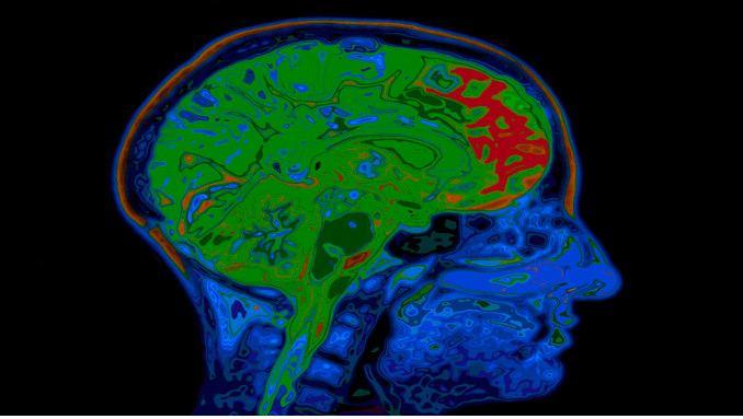 mri-brain-scan-compressed