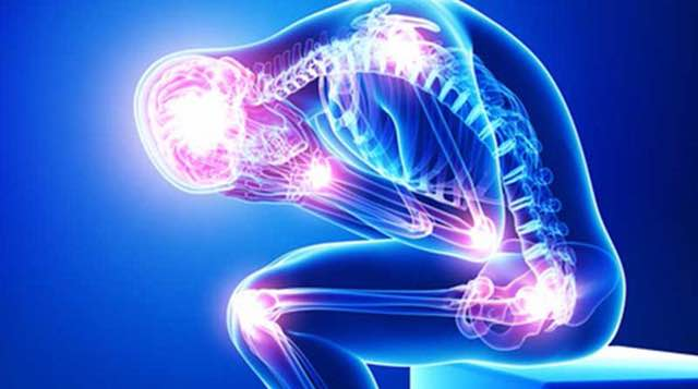 rheumatoid arthritis