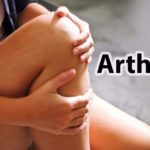 Study Shows Weather Conditions May Affect Arthritis Flare Ups (Plus Natural Ways to Reduce Them)