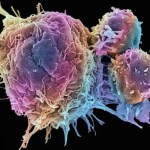 Cancer: Busting the Myths – More Natural Cancer Treatments