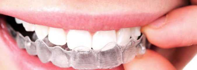 Are Teeth Aligners Safe to Use?