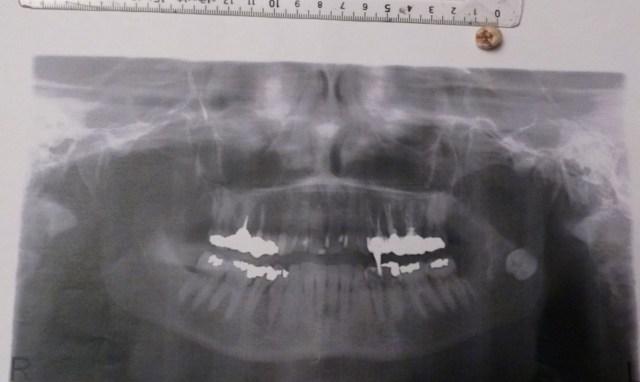 Projection de la moitié coronnaire d'une dent de sagesse du bas dans la fosse ptérigomaxillire/ Radio et fragment après récupération. Photo envoyée par une lectrice.