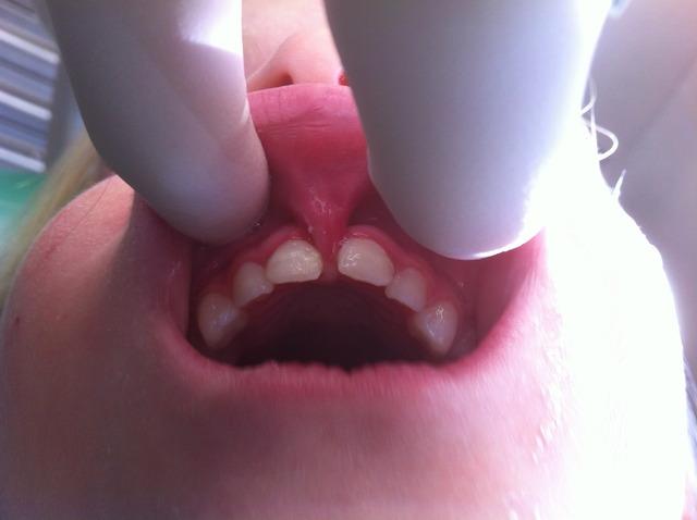 Frein lèvre supérieure hypertrophique (eugénol.com)