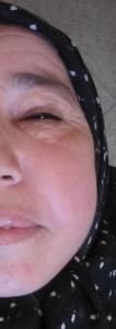 Emphysème palpébral unilatéral en relation avec une incisive latérale supérieure infectée (Carrefour Dentaire).