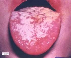 MYCOSE BLANCHE (atlas-dermato.org)