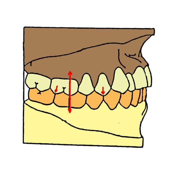 """Résultat de recherche d'images pour """"inter-cuspidie dentaire"""""""