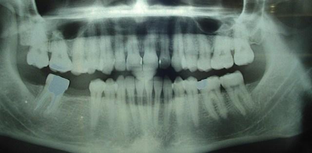Canal mandibulaire bien visible, bas dans l'os mandibulaire, loin des racines dentaires.