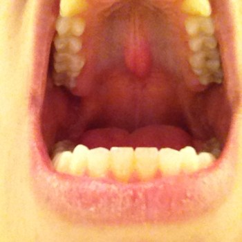 Exostose débutante, chez une jeune femme ayant subi un traitement orthodontique par plaque palatine.