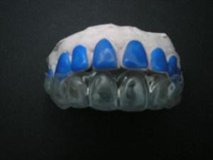 La résine bleue sert à épaissir les parties à &claircir de façon à créer un réservoir de gel éclaicissant. (labo-arcad).