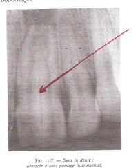Une petite dent surnuméraire pousse à l'intérieure de la pulpe d'une dent.