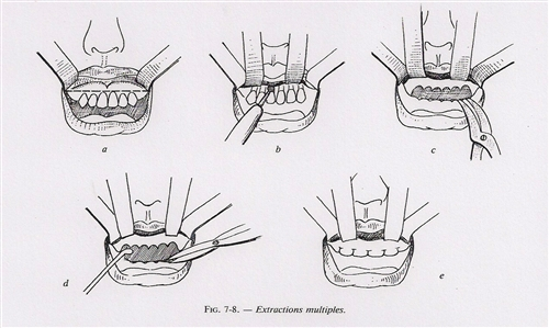 extractions-multiples