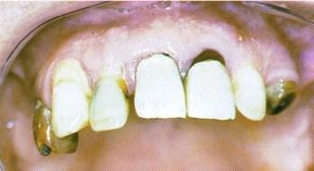 Dents à extraire (labo odic)