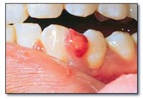 Granulome pyogène (dentalcare.fr).