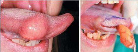 Lipome ligual et exérèse chirurgicale (Mécecine Intérée).