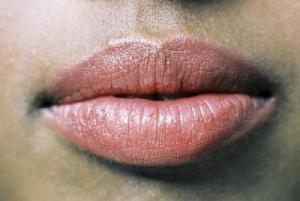 Chéilite allergique (scottsarber.com).