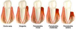 enfermedad-periodontal-