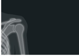 Suffered a Shoulder Injury After Receiving a Vaccine? If you have a shoulder injury related to a vaccine join the vaccine shoulder injury investigation! consider the consumer
