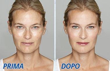 Hydraxil prima e dopo