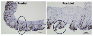 Biopsias esofagitis eosinofílica