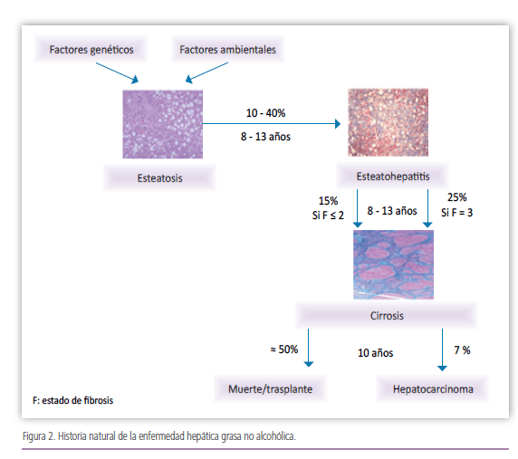 Evolución del hígado graso