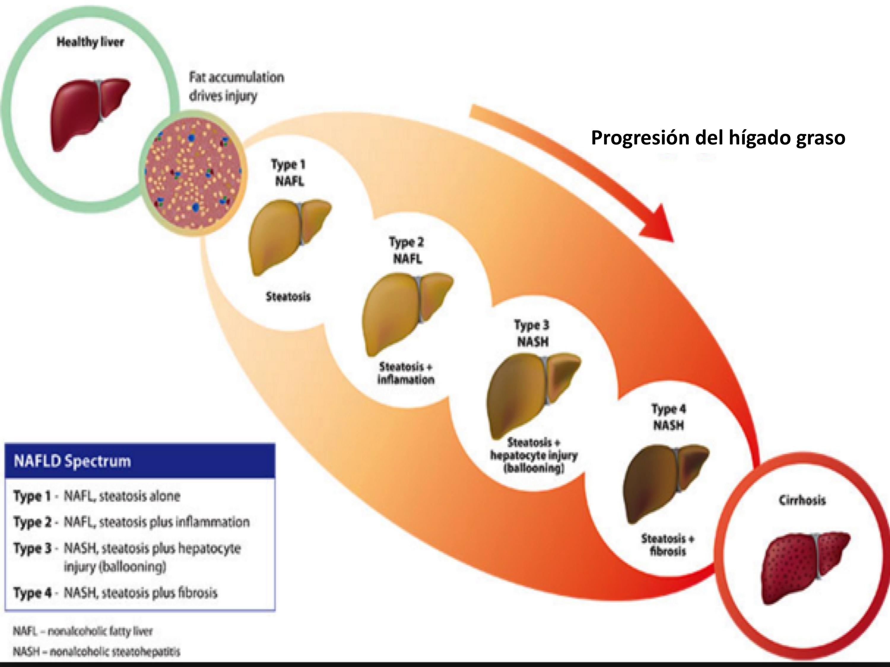 tratamiento medico para hígado graso