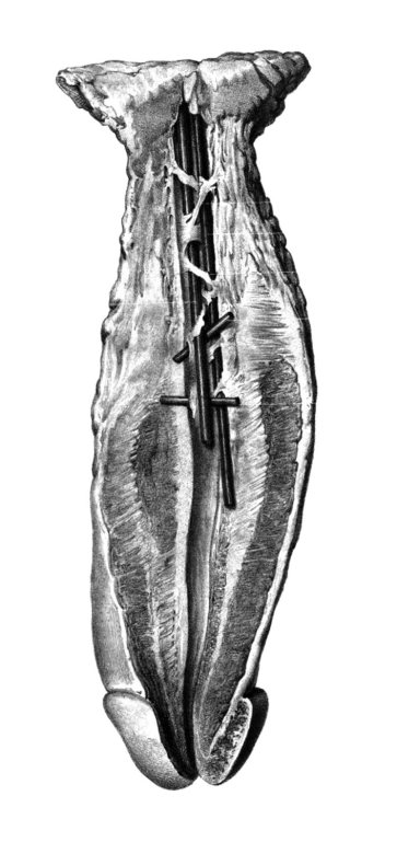 Estenosis Múltiple de la Uretra Bulbar (José Pró, 1856)