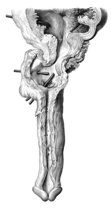 Estenosis Uretral (José Pró, 1856)