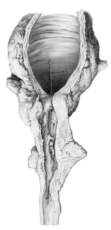 Estenosis de la uretra bulbar (José Pró, 1856)