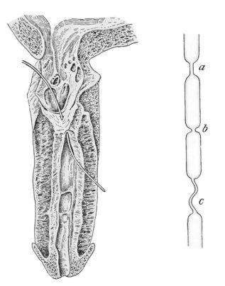 – Tipos de estenosis uretral: Lineal (a), anular (b), y tortuosa (c) –