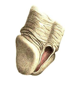 Hipospadias Distal (Maclise, 1859)
