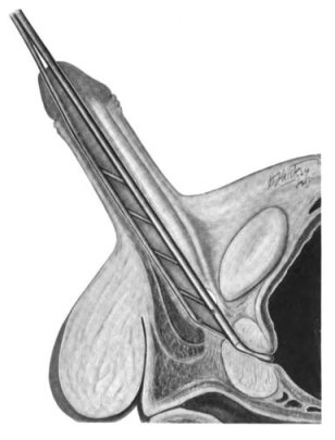 Uretrotomía interna tipo
