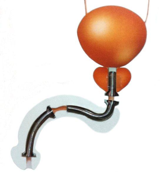 Anuncio de stents uretrales Memocath®