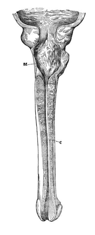 Estenosis Panuretral (Leroy-d'Étiolles, 1845)