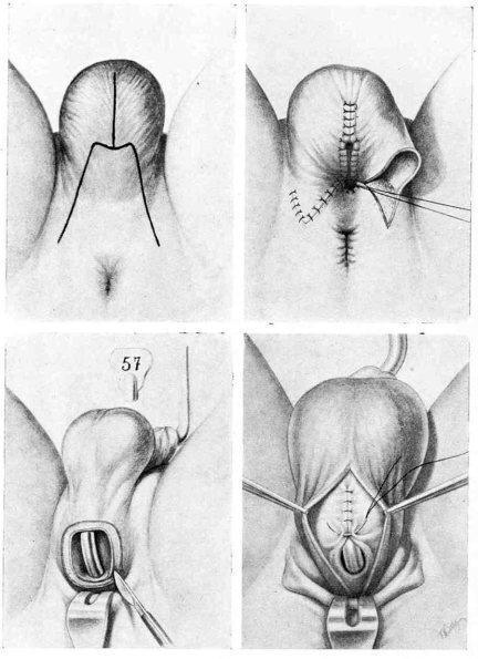 Uretroplastia Bulbar en Dos Tiempos (Gil-Vernet, 1967)