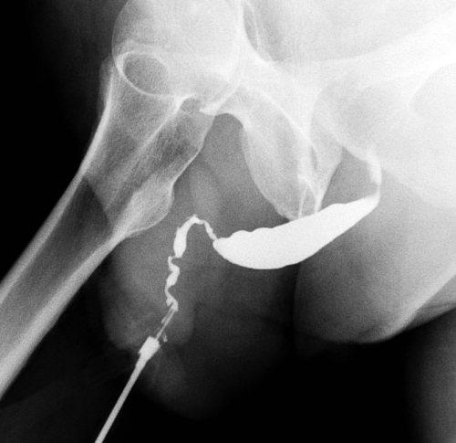 El liquen esclero-atrófico puede causar una importante estenosis o callosidad en la uretra.