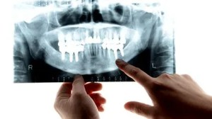 How Gum Disease May Increase Your Chances For Severe COVID-19 – Consumer Health News