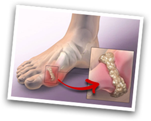 Foot -The Gout Eraser review