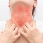 Alergias alimentarias pueden causar la muerte si no se atienden