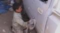 القيروان: إصابة طفل يعمل في ورشة إصلاح سيارات بحروق بليغة